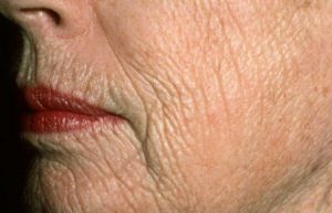 تغییر در پوست سالمندان